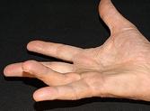 Eine Kontraktur kann verschiedene Ursachen haben: unflexibles Narbengewebe oberhalb eines Gelenkes Degeneration des Muskelgewebes, etwa in Folge .